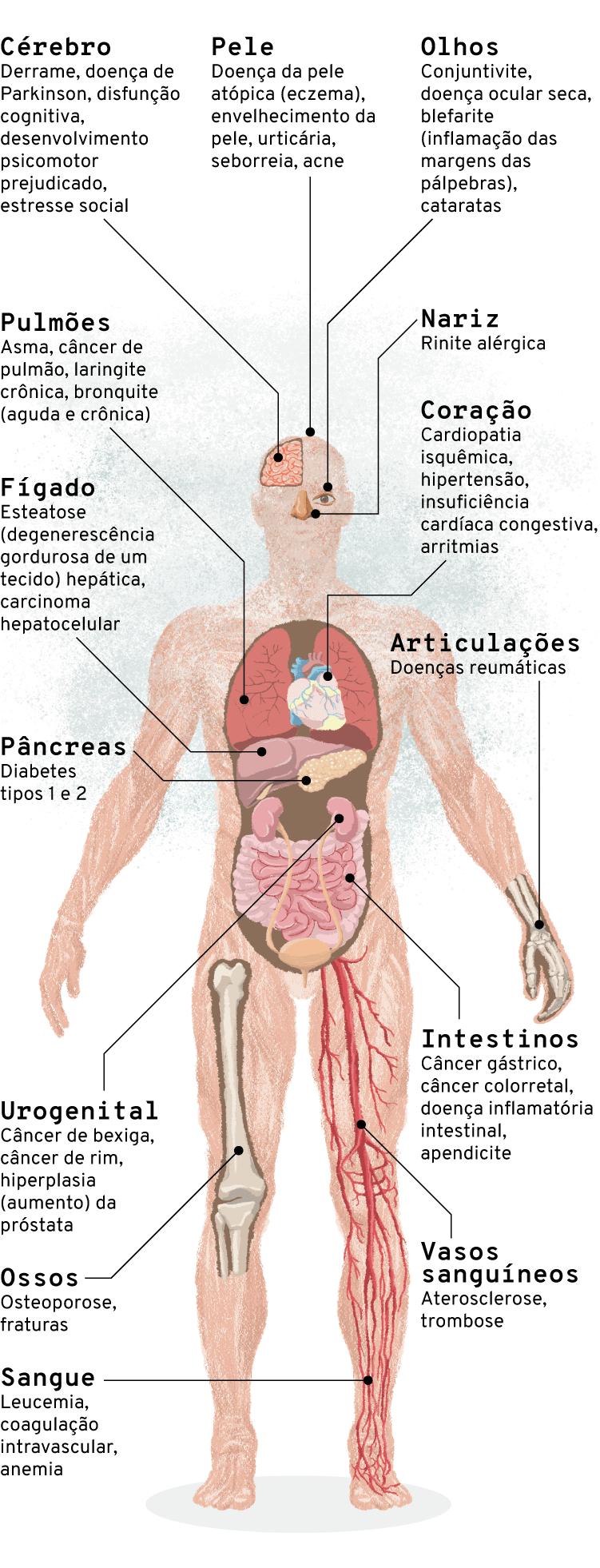 Infográfico: Doenças ligadas à poluição do ar por órgão do corpo humano